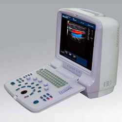 Portable Color Doppler Ultrasound Scanner